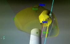 imagerie IRM/échographie de biopsie ciblée sur une prostate avec tumeur