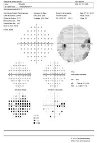 Déficit du champ visuel