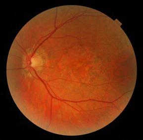 DMLA atrophique oeil gauche