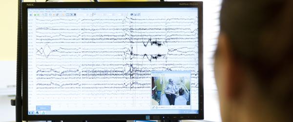 Neurologie EEG épilepsie